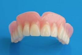 Acrylic prosthesis